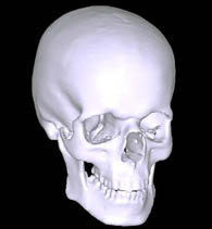 3D CT hlavy
